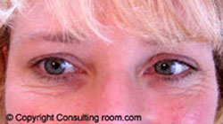 Patient smiling 7 days following Botox® injections to her right eye only