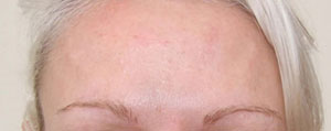 Female forehead 14 days post botulinum toxin treatment.