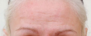 Female forehead before botulinum toxin treatment.
