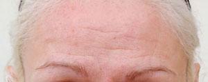 Female forehead before botulinum toxin treatment.