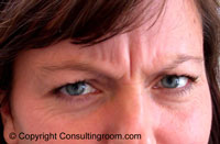 40 year old patient frowning before first Botox treatment