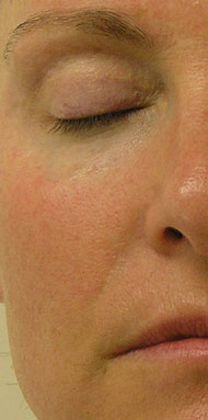 Nasolabial Area After Hydrafacial Treatment