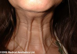 Platysmal bands on the next before Botox treatment