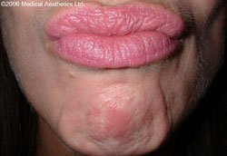 Popply chin before Botox treatment