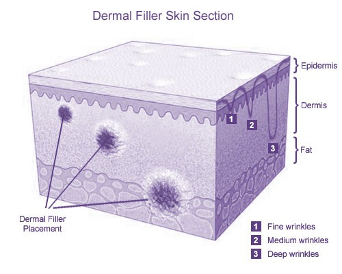 Dermal Fillers Skin Section