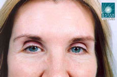 Patient showing a significant improvement in forehead lines 10 days after treatment.