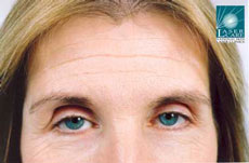 46 year old female with forehead lines before treatment with Botox® injections
