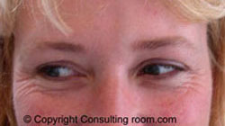 37 year old patient smiling before Botox® injections