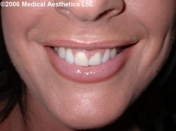 Gummy smile after Botox treatment