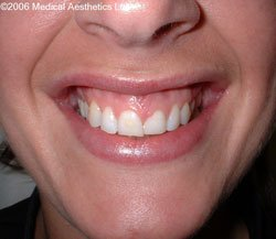 Gummy smile before Botox treatment