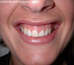 Gummy smile before Botox treatment