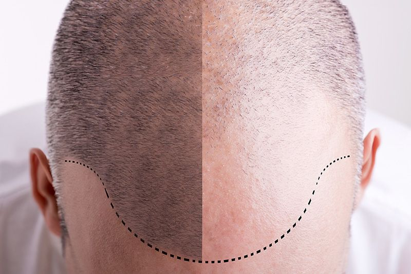 Diagnosing Female Hair Loss Image