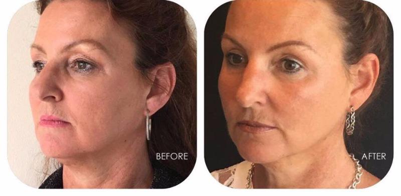 Facial Skin Tightening, Sagging Skin and Jowls Gallery
