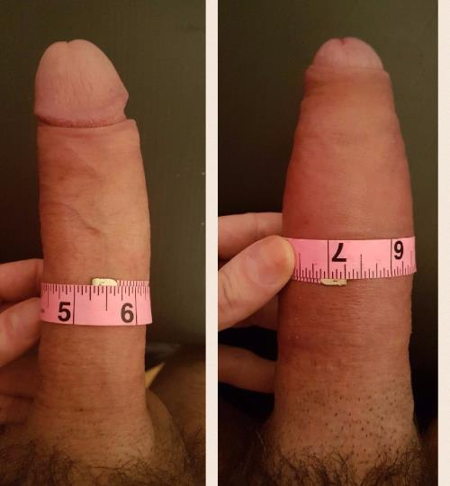 Penis surgery before after