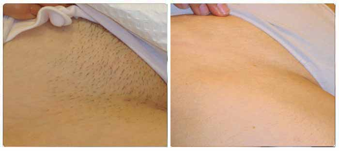 Chiltern Medical Clinic Reading Laser Hair Removal