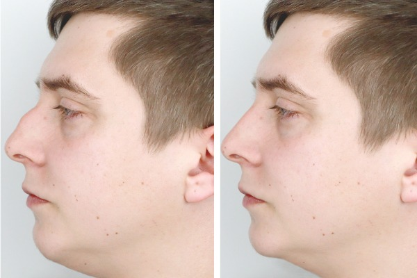 Cosmetic Rhinoplasty or Nose Job Information Image