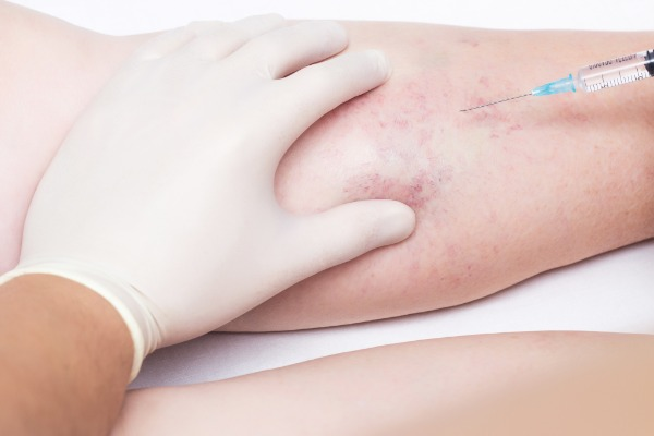 Sclerotherapy and Microsclerotherapy Information Image