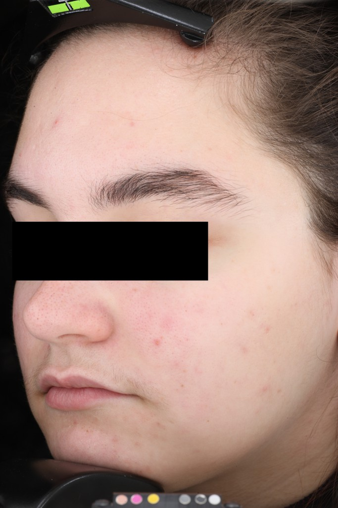 AlumierMD After Treatment