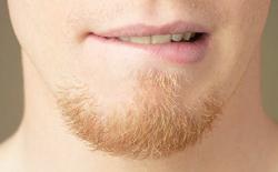 Facial Hair Transplants