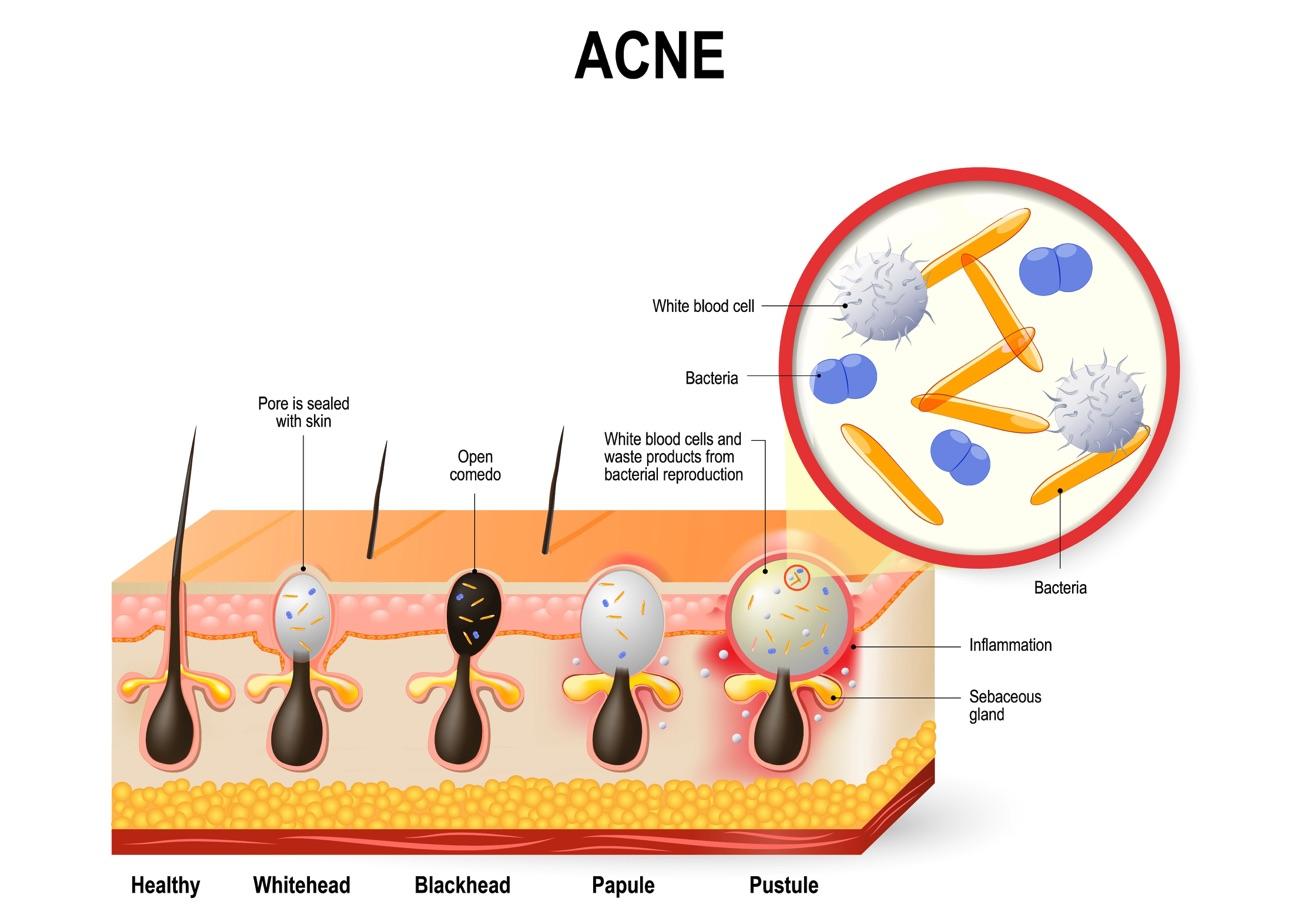 Illustration of Acne