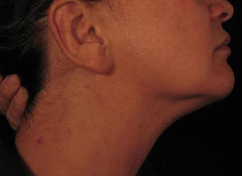 Florid Rash Caused by Vitamin B12 Injections Administered ... B12 Deficiency Skin