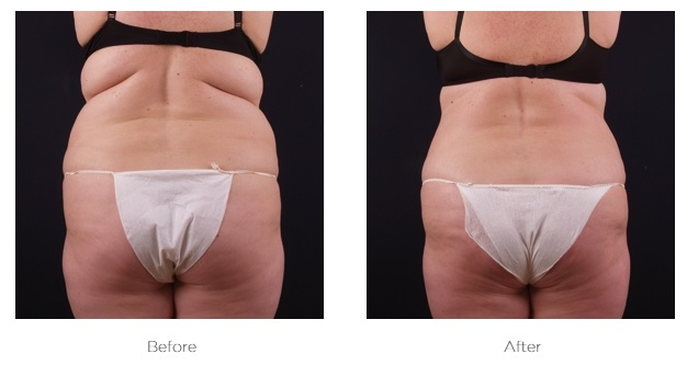 Exilis_Before_and_AFter_Abdomen