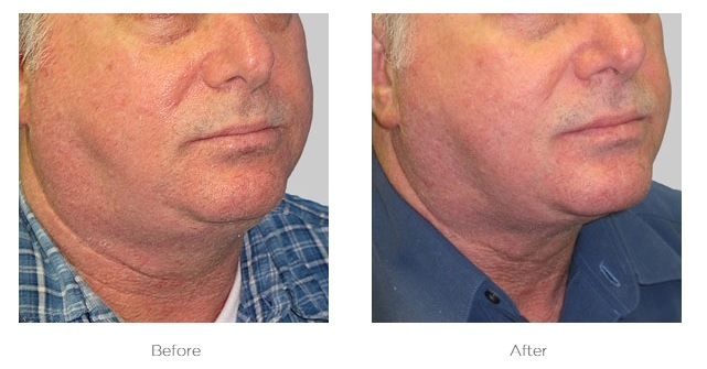 Exilis_Before_and_After_Neck