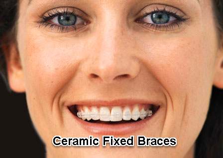 Straightening Your Smile Braces For Adult Teeth Explained