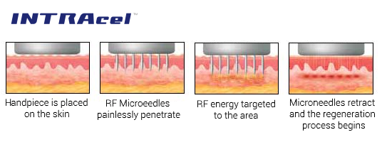 INTRAcel Fractional Radiofrequency (RF) Micro-Needling