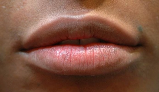 Lips After Revanesse Image