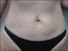 Abdomen after treatment with Tripollar
