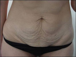 Abdomen before treatment with Tripollar