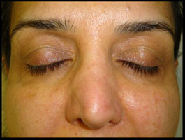 Female With Pigmentation Associated With Sun Damage Acne After CosMedix Peel Treatment