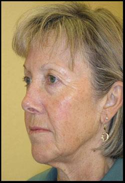 Female After CosMedix Timeless Peel Treatment