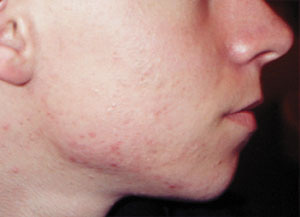 Acne - after Agera Rx Peel treatment