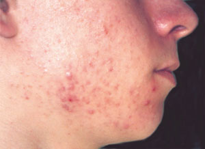 Acne - before Agera Rx Peel treatment