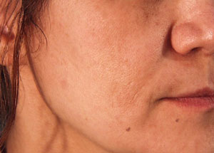 Hyperpigmentation - after Agera Rx Peel treatment