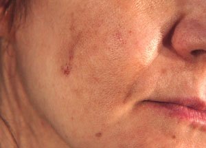 Hyperpigmentation - before Agera Rx Peel treatment