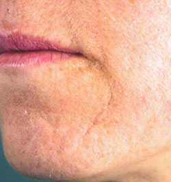 Age related scarring - after Agera Rx Peel treatment