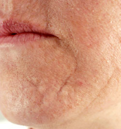 Age related scarring - before Agera Rx Peel treatment