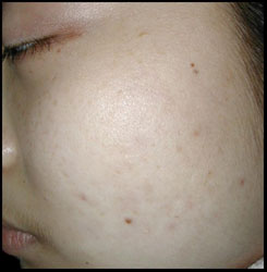 Asian (Oriental) Female With Acne After CosMedix Peel Treatment