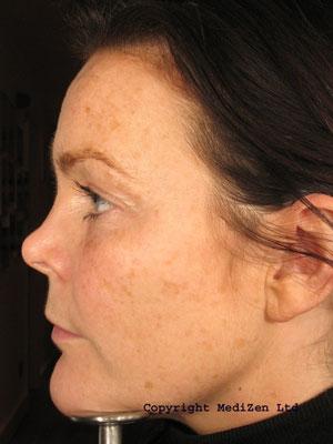 Pixel 174 Fractional Laser Skin Resurfacing Information