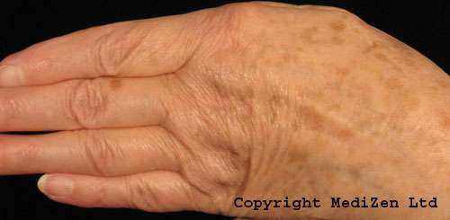 Before Radiesse Hand Rejuvenation