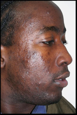 Male With Acne Before CosMedix Peel Treatment - Side of Face