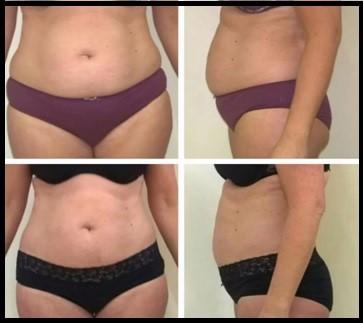 Antes y después del tratamiento de cavitación