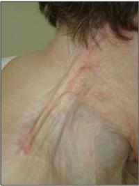 Skin Contracture