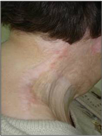 Improvement in Skin Contracture after treatment with VAVELTA