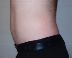 Male after Eporex no-needle mesotherapy treatment