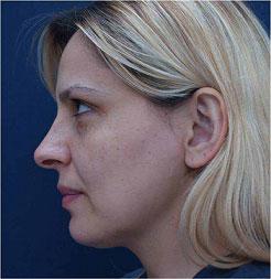 Face 6 months after Tripollar treatment