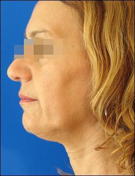 Face before Tripollar treatment